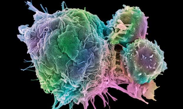 Cancer drugs shed light on rheumatism