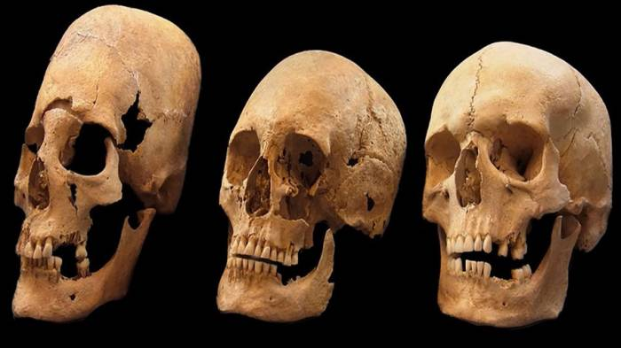 Mystery of alien-like skulls from medieval Europe revealed after 50yrs