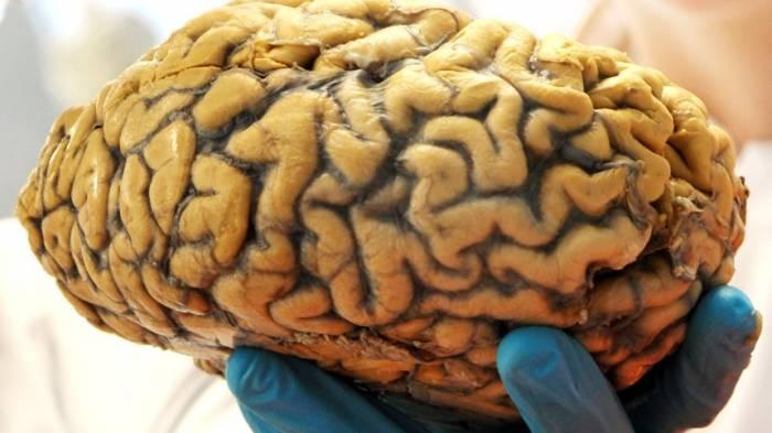 Gehirn lebt außerhalb des Körpers weiter