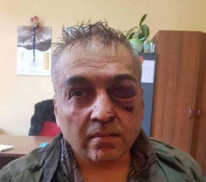 İrəvanda banka silahlı basqın edildi: