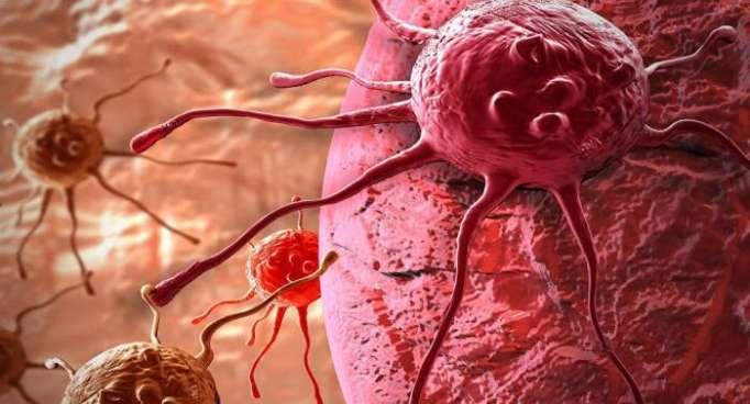 Soigner les formes de cancer les plus agressives sera-t-il bientôt possible?