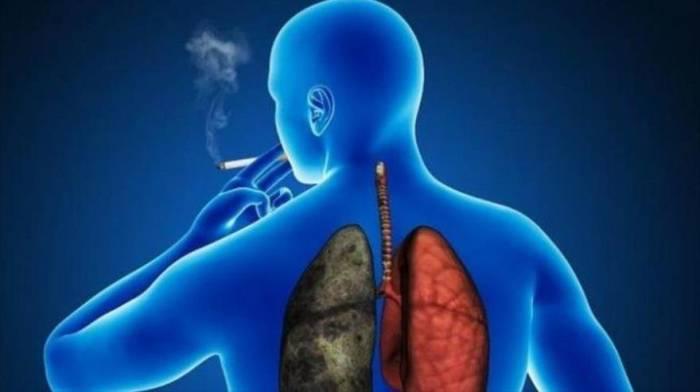Cáncer de pulmón causa 60 mil muertes al año en Latinoamérica