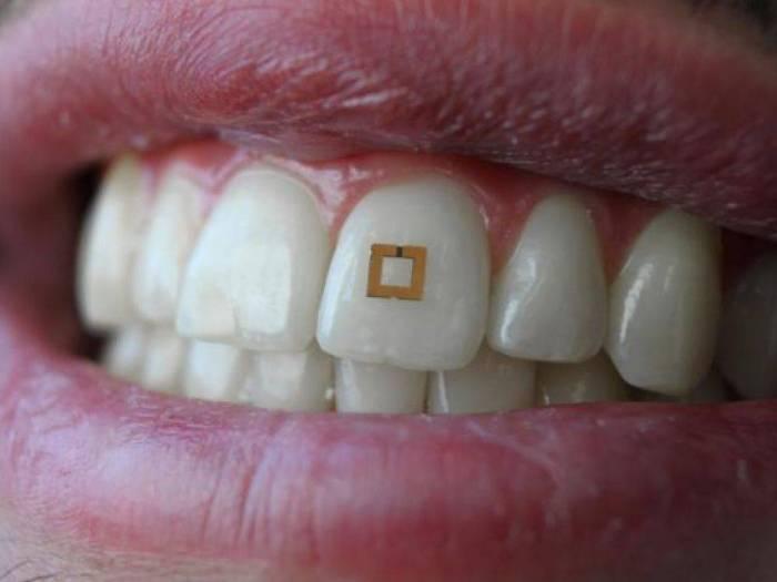 Un capteur sur une dent pour analyser son alimentation