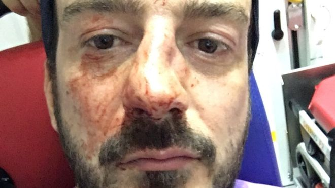 Head of anti-homophobia group assaulted in Paris