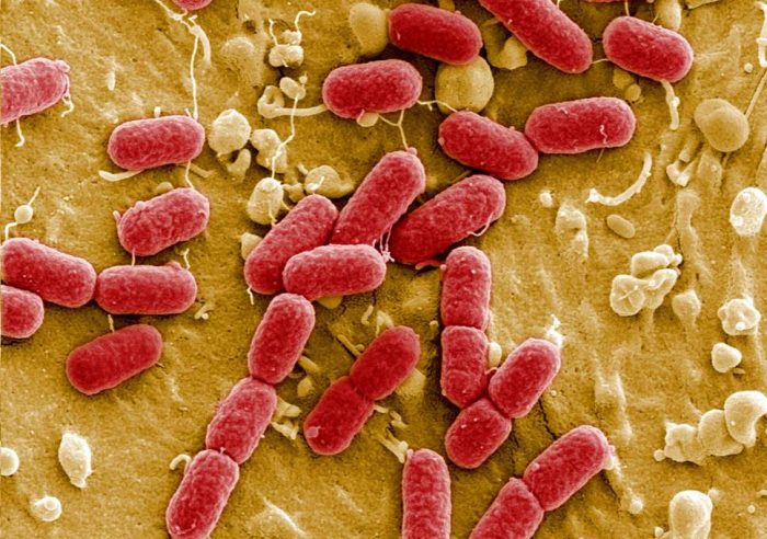 Antibiotic resistance may 'send medical care back to the dark ages'