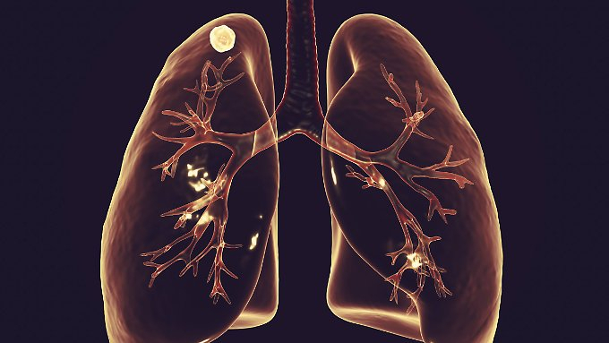 Medikament heilt Tuberkulose-Patienten