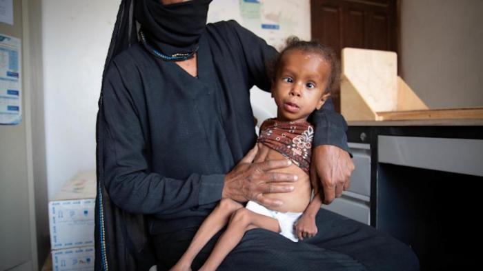 Doce millones enfrentan la peor hambruna en la historia de Yemen