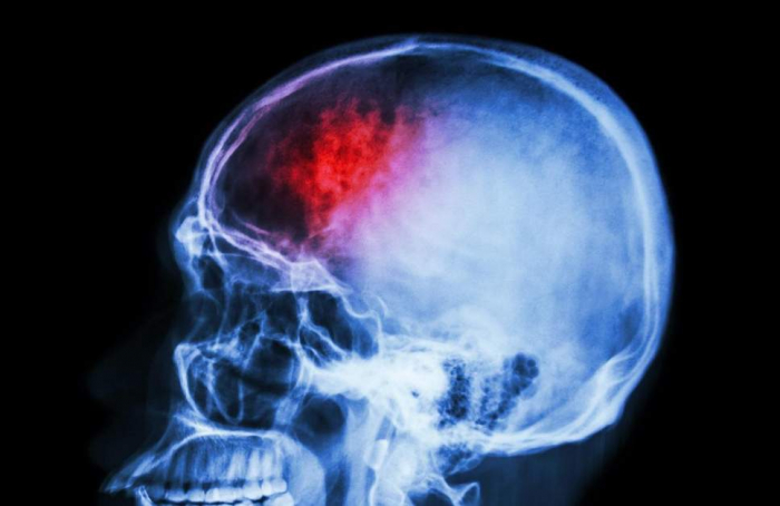 Brain implants will soon allow hackers to