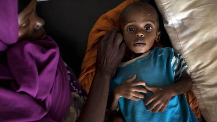 Cholera kills 71 in northeast Nigeria