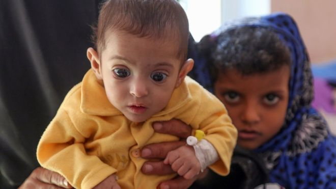 Yemen war: US Senate advances measure to end support for Saudi forces