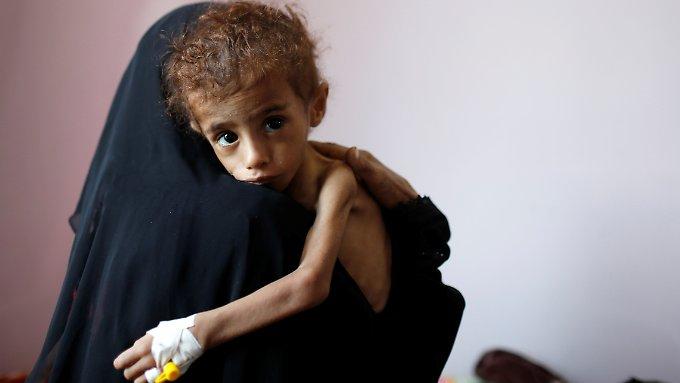 Im Jemen opfert der Westen ein ganzes Volk