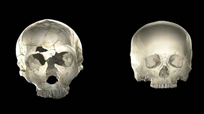 Rare Neanderthal DNA mean some people's brains are slightly different shape, study suggests