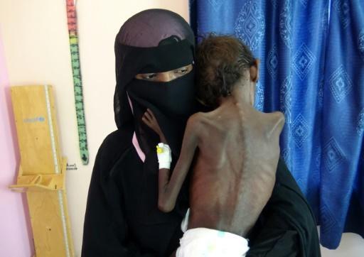Au Yémen, un hôpital se débat pour sauver des enfants malnutris