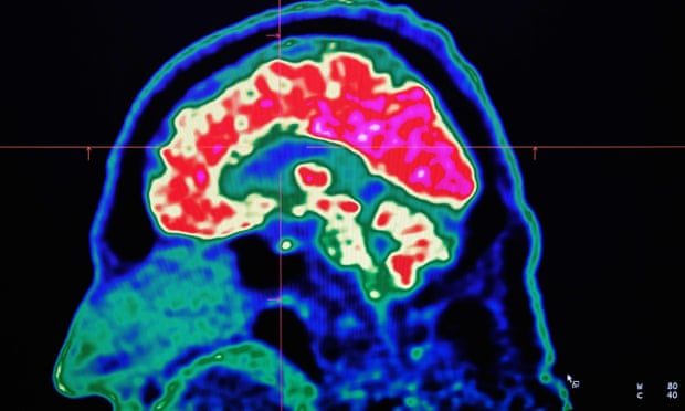 Activity sharpens even dementia-affected brains, report suggests