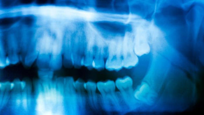 Un pigmento azul en los dientes revela una sorprendente cualidad de las mujeres medievales