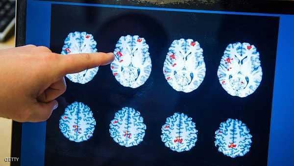 """دماغ الرجل أم المرأة.. دراسة تكشف """"الفارق المذهل"""""""