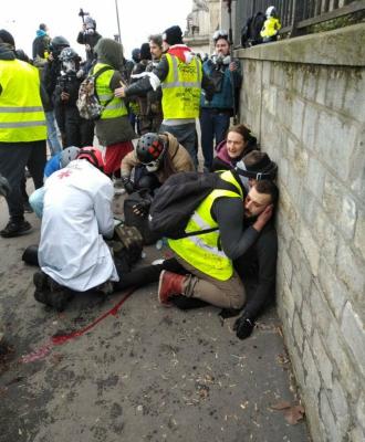 Un   'chaleco amarillo'   pierde una mano al estallarle una granada lacrimógena en París