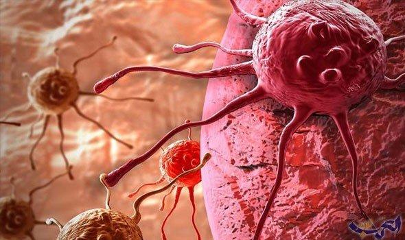 باحثة تؤكد أن كارثة تشيرنوبل مسؤولة عن ارتفاع إصابات السرطان في العالم