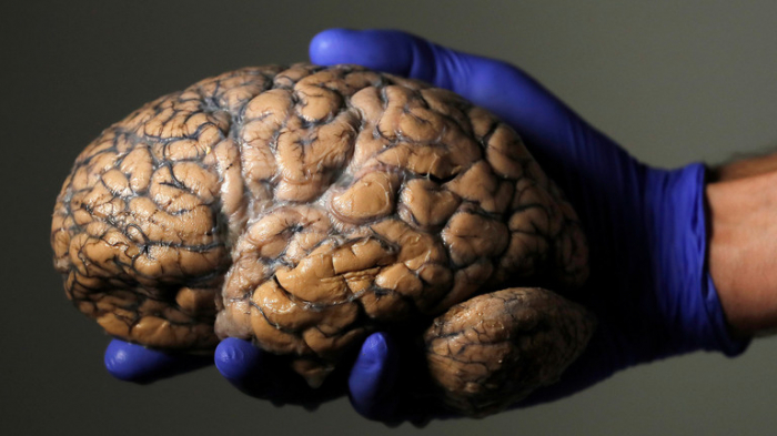 World's 1st remote brain surgery via 5G network performed in China