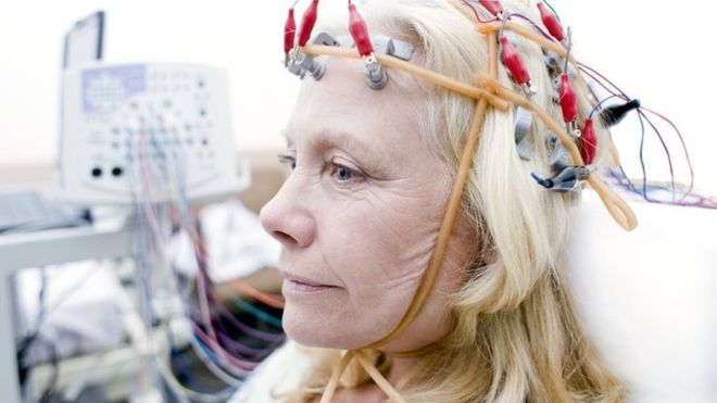 Precise brain stimulation boosts   memory