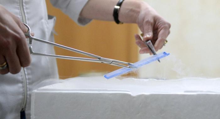 Vater von 49 Kindern: Arzt befruchtete insgeheim Patientinnen mit eigenem Sperma