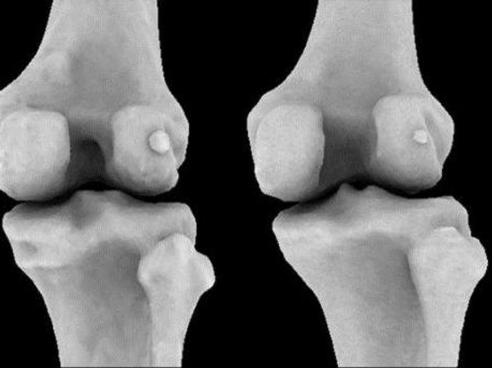 Bone thought to be lost to evolution mysteriously returning to human body