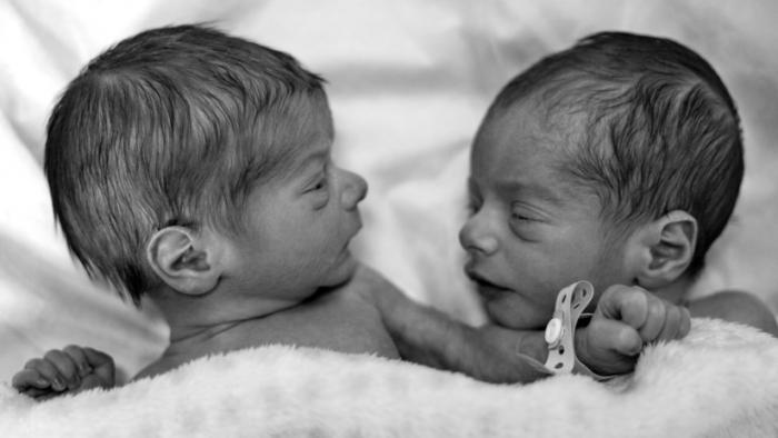 Récord  : Dos gemelas alemanas nacen con 3 meses de diferencia y en años distintos