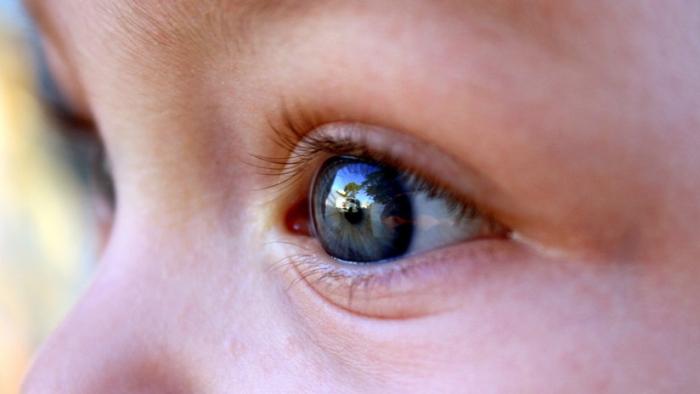 EE.UU.  : Detectan 10 tumores en el ojo de una niña de 2 años