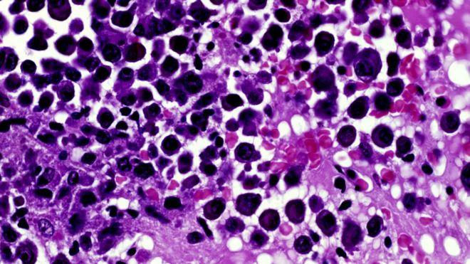Cancer: Breakthrough treatments to target drug resistance