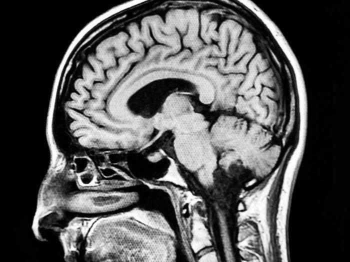 Understanding brain stimulation is like understanding an orchestra