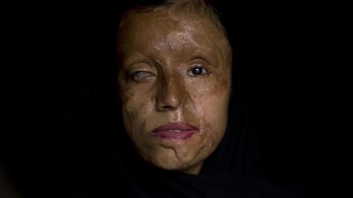 Irán castigará con la pena de muerte los ataques con ácido