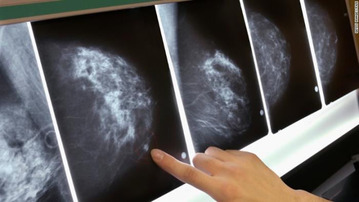 Morning people may have a lower risk of breast cancer, says study