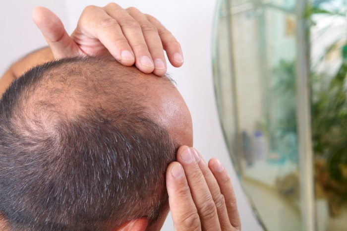 A cure for baldness is on the way, scientists claim
