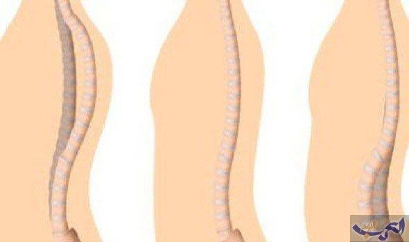 تعرَّف على أسباب وأعراض متلازمة باسن على الجسم للكبار والصغار