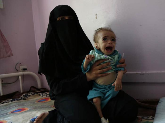 Yemen cholera outbreak hits over 200,000 children in 2019