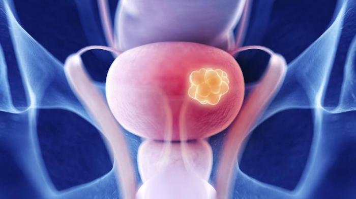 Harmlose Erkältungsviren killen Krebszellen