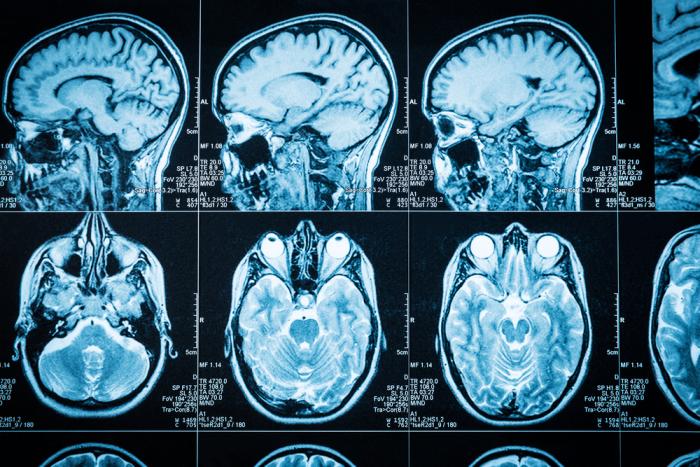 Ultrasound deep brain stimulation may treat Parkinson