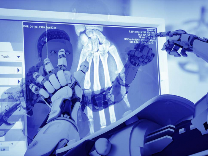 AI may be the future of radiology