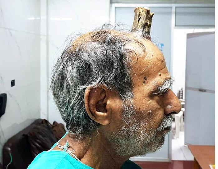 74 yaşlı kişinin buynuzu çıxdı - Fotolar