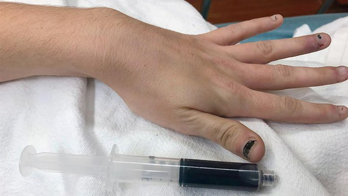 Le sang de cette femme devient bleu à cause d'un médicament
