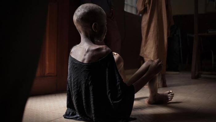 Un jeune enfant sur trois est mal nourri ou en surpoids,   Unicef