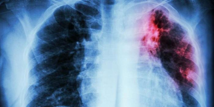 Tuberculose:   de moins en moins de morts