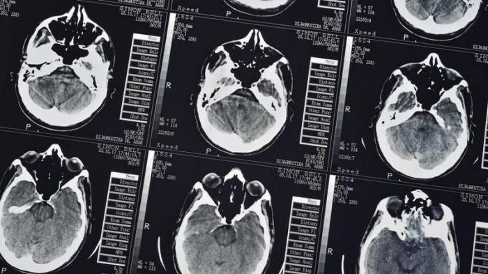 Descubren que la manera en que nuestro cerebro memoriza la información depende de cómo la aprendemos