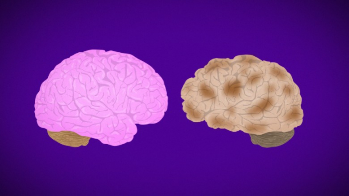 Lifestyle changes improved cognition in people at risk for Alzheimers, study shows