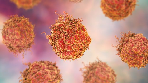 Immunotherapy offers hope for men with prostate cancer