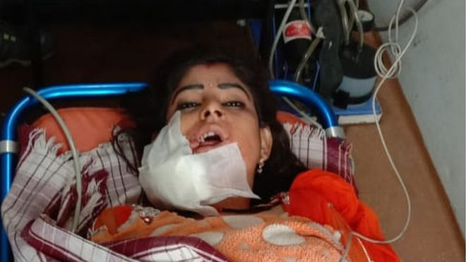 Woman shot in face 'because she stopped dancing' at wedding in India