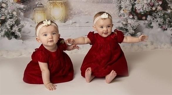 عملية بالليزر تنقذ طفلتين داخل الرحم