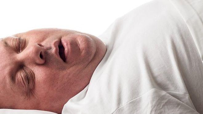 Fatty tongues could be main driver of sleep apnoea