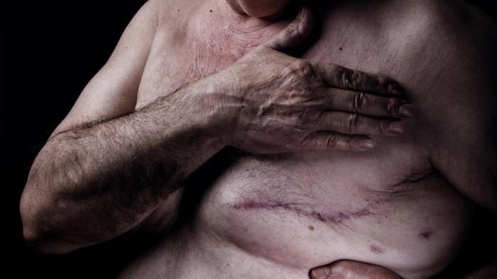 The   female  disease killing men