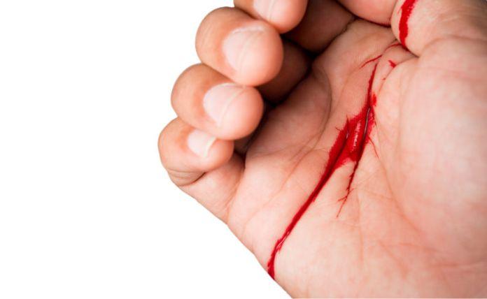 Hemofobia  : ¿Por qué ver sangre provoca desmayo a algunas personas?
